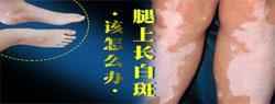 武汉白癜风专科医院-武汉环亚中医白癜风医院